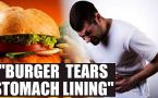 Burger eating competition held in Delhi, winner vomits blood