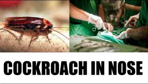 Chennai doctor takes out cockroach 'Alive' from woman's nose