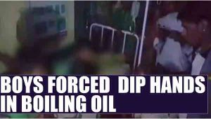 MP children forced to dip hands in hot oil : Watch video