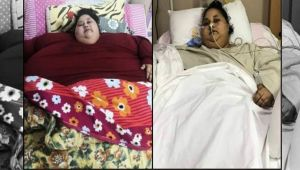 World's heaviest woman Eman Abdul Atti passes away due to heart and kidney dysfunction