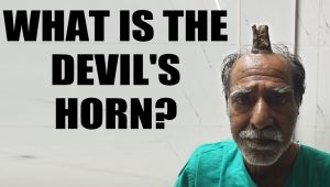 Man gets 'Devil's horn' removed: What is this condition?