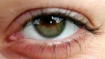Many LASIK patients have new eye problems after surgery: study