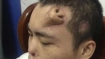 China: Man gets a new nose on his forehead