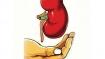 HIV-positive person donates kidney to fellow HIV-positive patient; doc calls it 'huge'