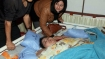World's heaviest Egyptian woman loses 140 kg since arrival in India