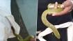 WATCH: Venomous green snake removed from kurta of sleeping man in hospital