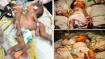 Twins conjoined in the chest, abdomen successfully separated after 4 hours of surgery