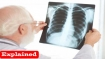 Explained: Researchers show how chest X-rays help in diagnosis of COVID-19