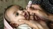 Maharashtra: 12 children given sanitiser instead of polio drops