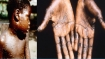 What is monkeypox? Is it contagious? How dangerous is this rare zoonotic viral disease found in UK