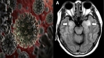 Signs of rare brain condition including stroke, seizures, confusion seen in some coronavirus patient