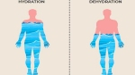 Do you know what happens when there is 20% shortage of water in the body