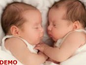 Conjoined twins die after 4 months of birth