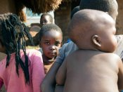 1.4 million children face famine in 4 countries: UNICEF