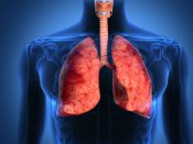 Now, a new machine learning model that can classify types of lung cancer