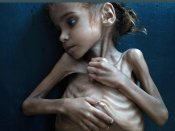 70% Yemenis are hungry, 250,000 face catastrophe: UN
