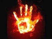 Uttarakhand: Teen set ablaze for rejecting love proposal