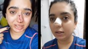 Zomato delivery boy assaults woman in Bengaluru, leaves her with broken nose