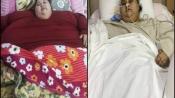 World's ex-heaviest woman Eman Abdul Atti passes away at 37