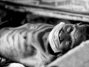 TB patient