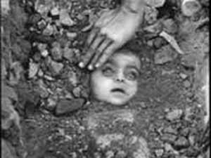 Bhopal Gas Tragedy victim
