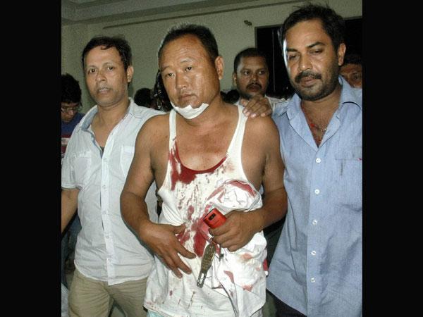guwahati-blast-injured
