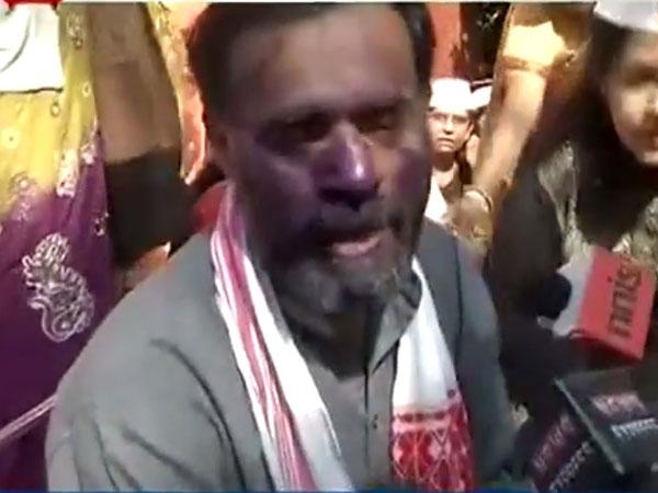 Yogendra Yadav's face smeared by ink