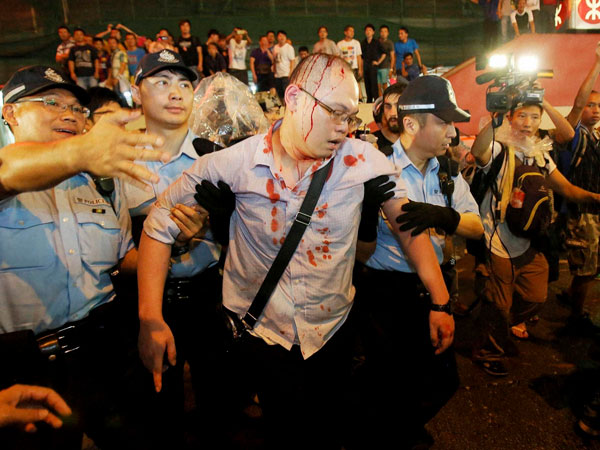 HK police arrest 19 at protest site