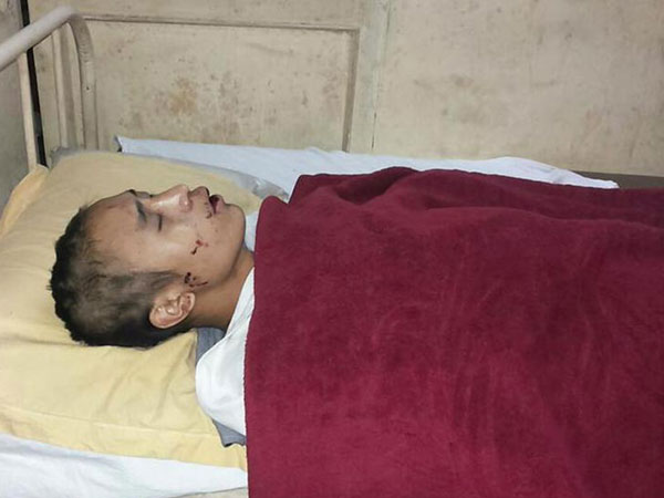 Gurgaon: 2 men from Nagaland assaulted
