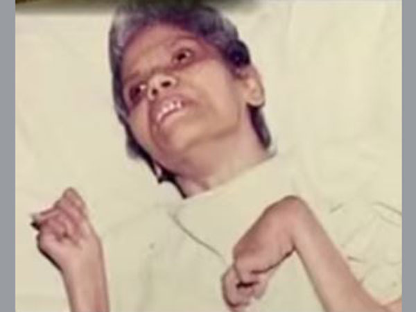 Aruna Shanbaug: All you need to know