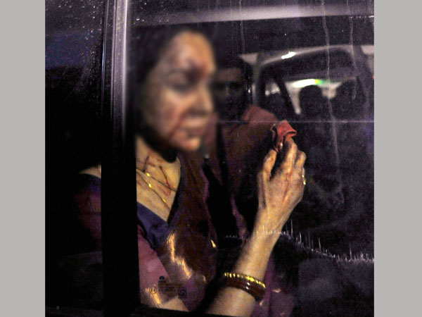 Hema Malini hospitalised after accident