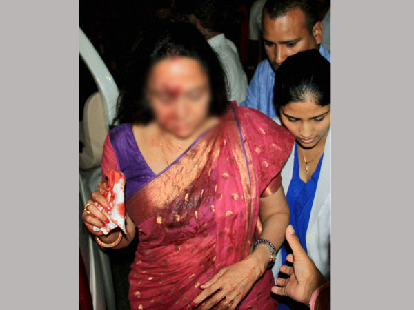 Hema Malini has head injuries