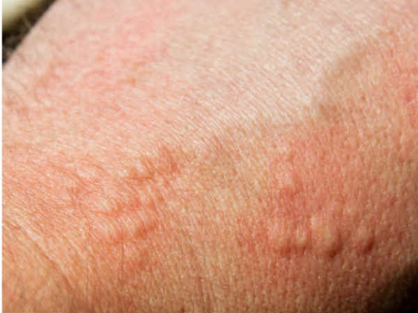 New Blood Test To Track Skin Cancer Oneindia News