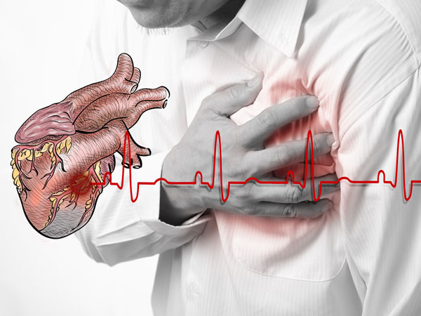 South Africa likely to see higher incidence of heart disease