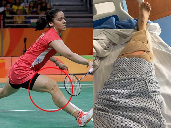 Saina Nehwal undergoes right-knee surgery in Mumbai hospital