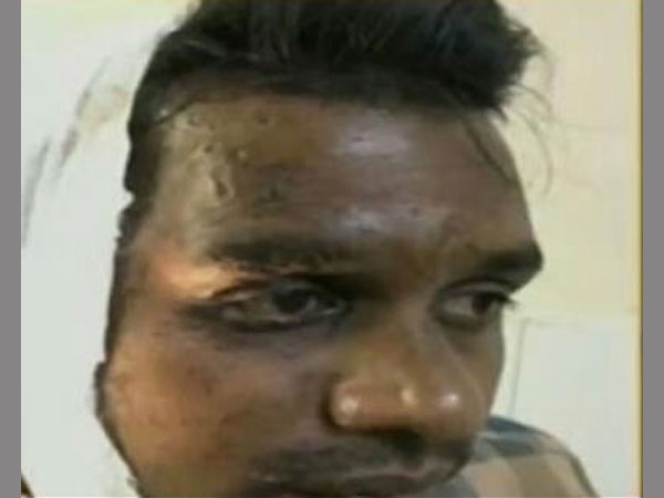 Jilted woman attacks man with acid in Bengaluru