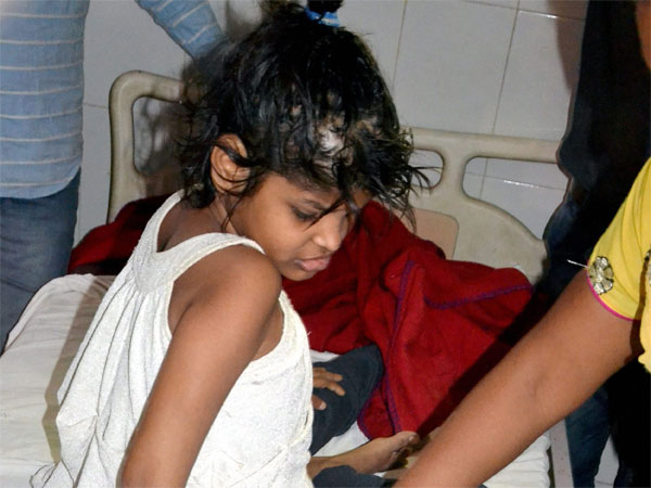 'Mowgli girl' who lived with monkeys in UP now known as 'Forest Durga'