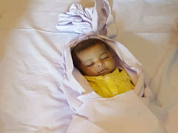 Miracle operation in India, baby dies in Pakistan
