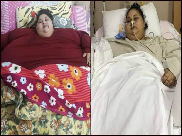 World's Heaviest women Eman Ahmed dies at Burjeel Hospital of Abu Dhabi