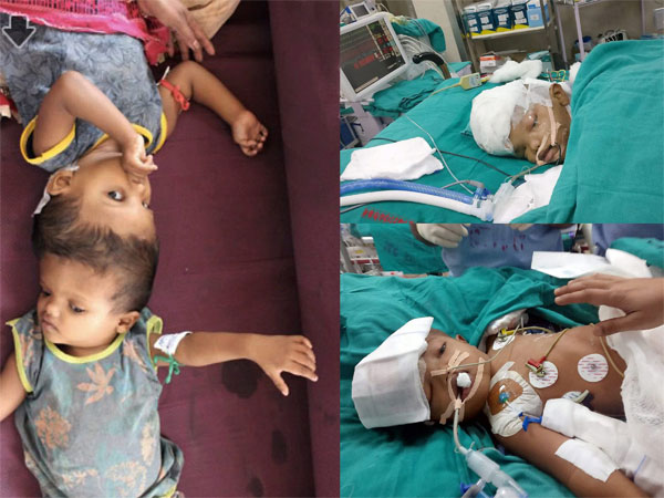 Conjoined twins from Odisha Jaga and Kalia (file picture at left), separated after 18 hours long surgery by a team of doctors at AIIMS in New Delhi