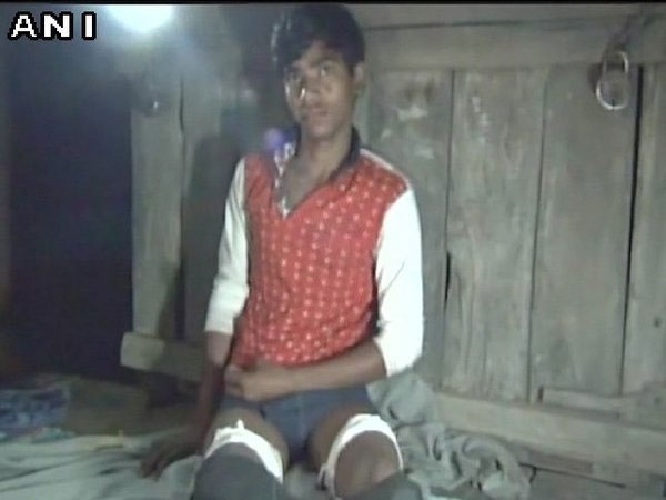 A Class 11 student suffered cuts on both legs. Courtesy: ANI news