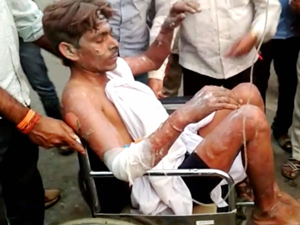 NTPC explosion: 7 critically injured labourers airlifted to Delhi