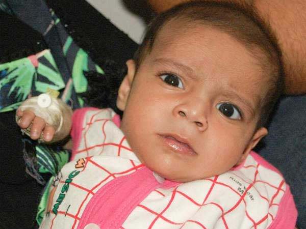 6-month-old Abu must undergo two urgent open heart surgeries to live