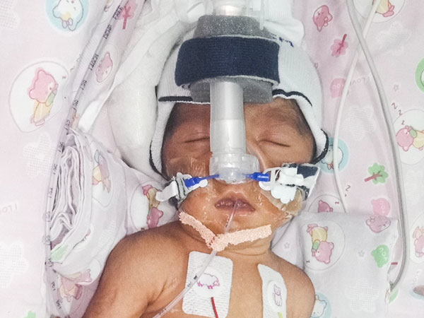 Driver's premature baby girl waits for treatment in NICU