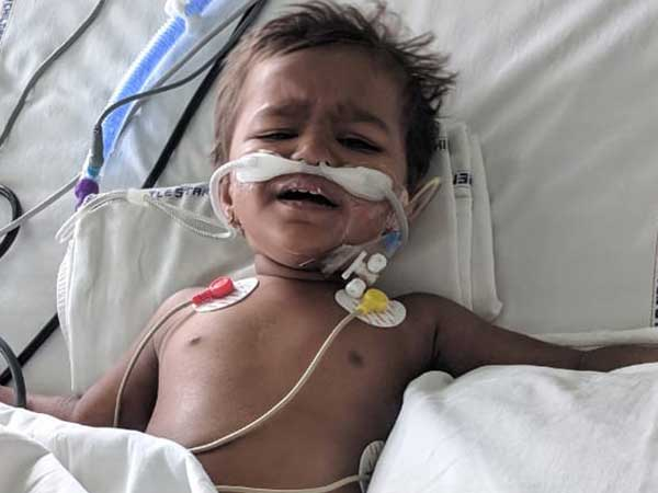 Little Bhima Bravely Fights Multiple Organ Failure
