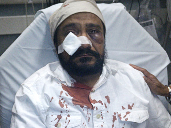 Go back to your country, Sikh man in US told after he was beaten up
