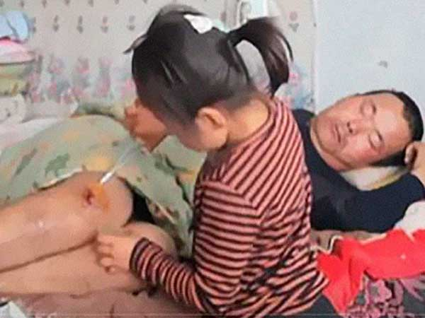 Six-year-old girl takes care of paralysed man abandoned by wife