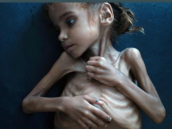 Death of Amal Hussain, malnourished Yemeni girl, brings back haunted memory of Aylan Kurd