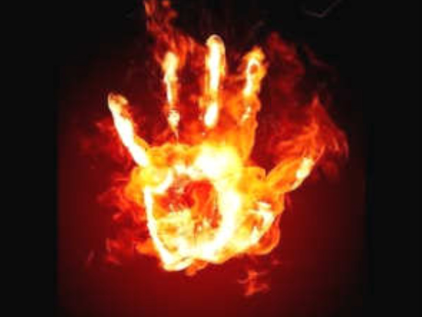 Uttarakhand: Teen set ablaze for rejecting love proposal