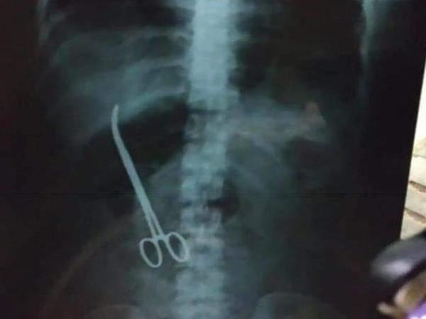 X-ray which shows forceps being left inside a woman (Image credit - ANI/Twitter)